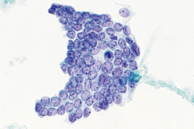 Pathology Outlines Bethesda Guidelines For Cytology